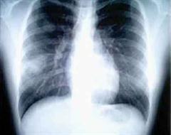 Die Kanadierin erlag der Lungenkrankheit SARS.