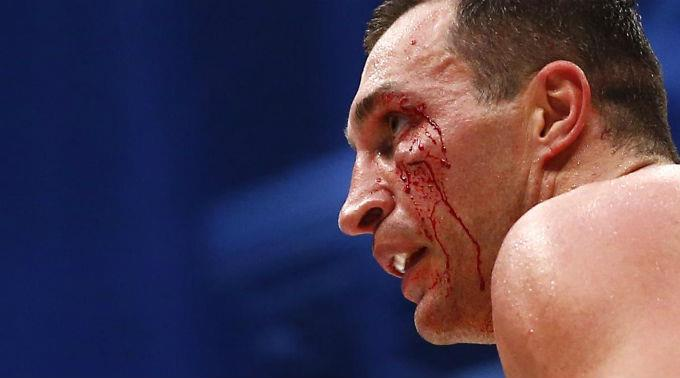 Der Kampf gegen Tyson Fury hinterliess bei Wladimir Klitschko Spuren.